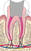 Root Canal Expert 11725